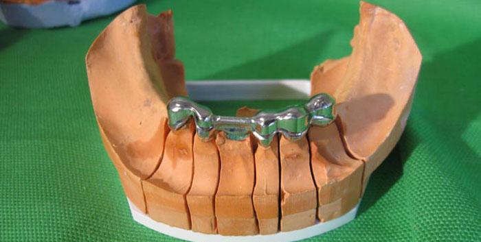 Prothèse clipsée